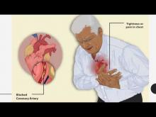Embedded thumbnail for Preventing Cardiovascular Diseases, SPICES DST PROJECT